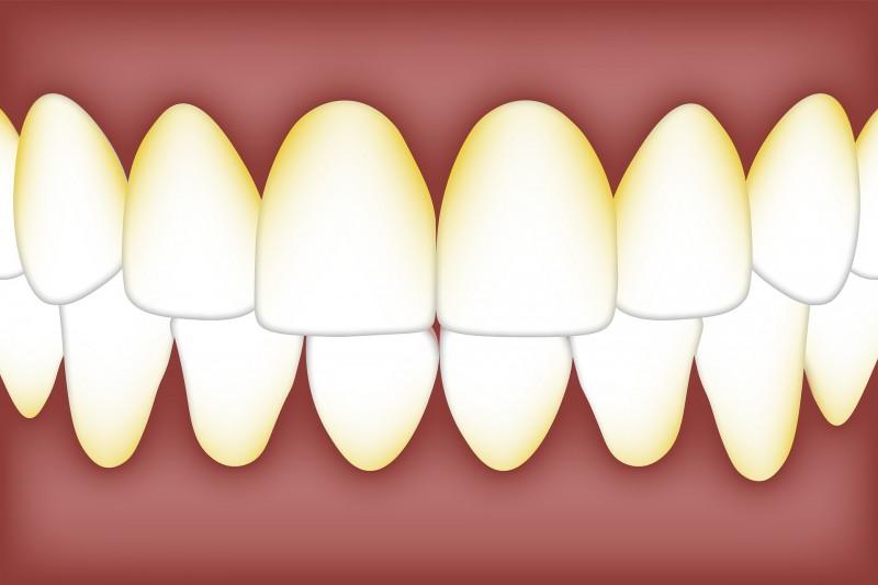 Tipps und Hausmittel zum Zahnbelag entfernen