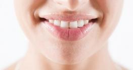 Hausmittel für natürlich weiße Zähne