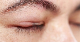 Hausmittel gegen geschwollene Augen und Augenlider