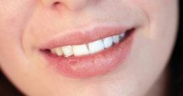 Hausmittel gegen rauhe und trockene Lippen