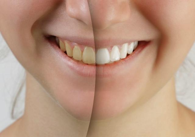 Vorteile & Gefahren von Bleaching der Zähne