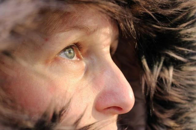 Empfindliche Haut im Winter