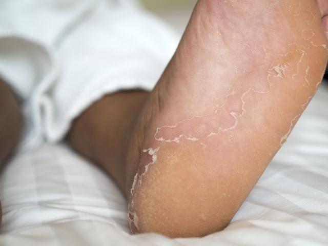 9 Hausmittel Gegen Fußpilz