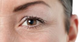 Hausmittel Augenfalten
