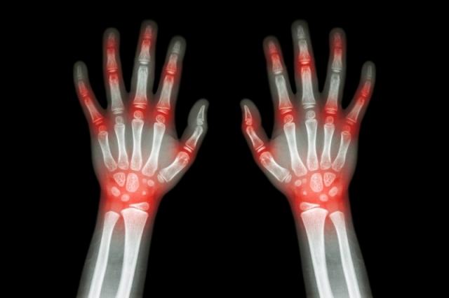 Bewährte Hausmittel bei Gelenkentzündung / Arthritis - Naturheilmittel | Gesundheitstipps