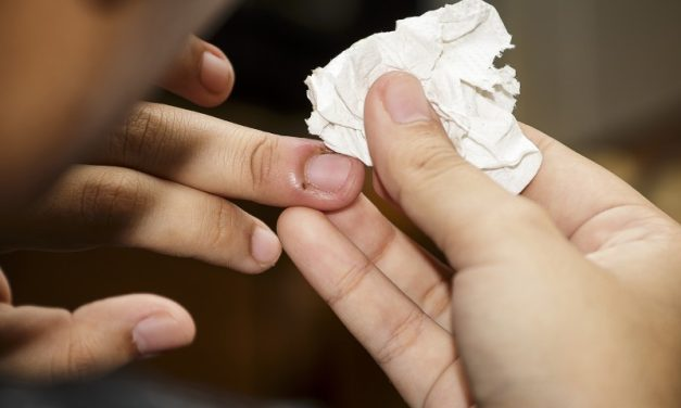 9 Hausmittel gegen Nagelbettentzündung