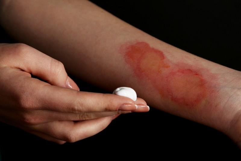 Erste Hilfe: Was tun bei einer Verbrennung?
